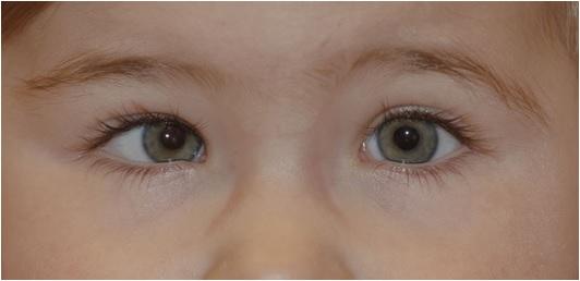 Estrabismo: problema visión infantil
