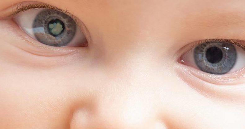 problema visión infantil: cataratas